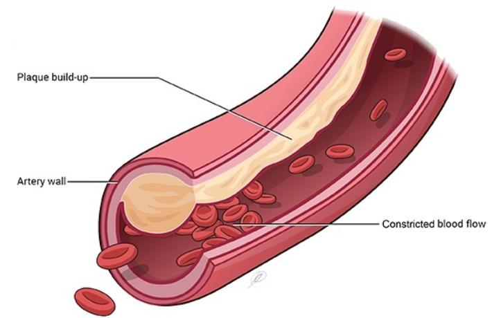 cardiovascular health cardarine