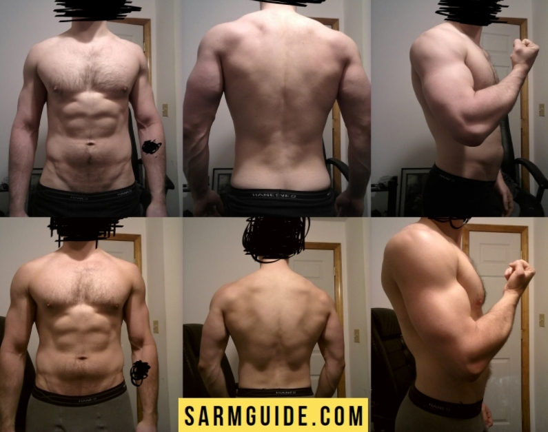 Ligandrol before and after result photo